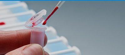 Tipus de test de coronavirus i indicacions